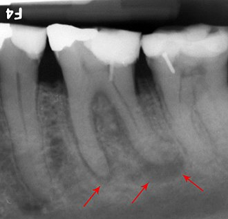 Apical abscess associated with roots of a lower molar. Abscessed tooth periapical radiograph.jpg