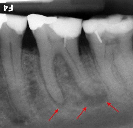 molar tooth abscess - HD2398×2001