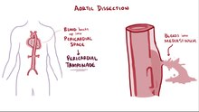 Archivo:Aortic dissection.webm