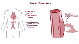 File:Aortic dissection.webm