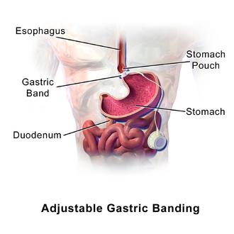 Adjustable gastric band - Illustration of adjustable gastric banding