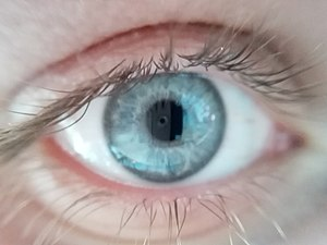 Limbal ring - Blue eye with clearly visible limbal ring. Subject: 18 year old Caucasian female