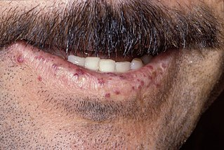Telangiectasia small dilated blood vessels[1] near the surface of the skin or mucous membranes