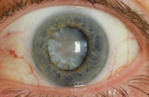 Cataract (28464844371).png