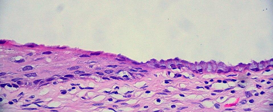 Cervix Normal Squamocolumnar Junction (565238127)