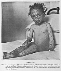 Child with Smallpox Wellcome L0032953.jpg
