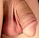 Circumcised highres closeup.jpg