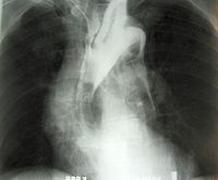 Dissecting aneurysm 01.jpg