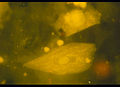 Epithelzellen43126.jpg