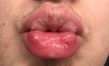 A szája az arcon egy dudor - Teratoma Fordyce granulátum vagy condyloma