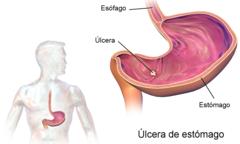 cuales son las enfermedades relacionadas con el sistema digestivo