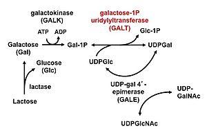 Duarte galactosemia - Image: Leloir pathway cropped