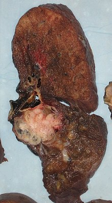 Lung cancer - Wikipedia
