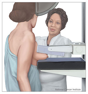 Mammography in process: Shown is a drawing of ...