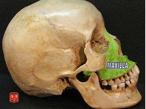 Maxillary Bone Maxilla