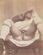 "Nadar - ""Hermaphrodite"" (Seventh Gallica image).jpg"