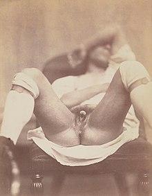 Pics of hermaphrodites