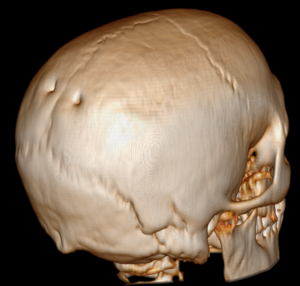 Parietal foramen - Surface rendered CT of the back of the skull. The parietal foramina are visible at left.