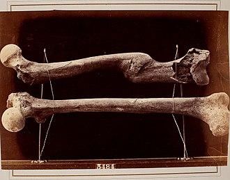 Bone healing - Femur (top) healed while improperly aligned
