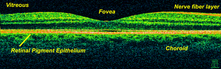 Time-Domain OCT of the macular area of a retina at 800 nm, axial resolution 3 um Retina-OCT800.png