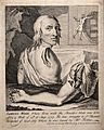 Samuel Wood, a man whose shoulder and arm were torn off in a Wellcome V0016721.jpg