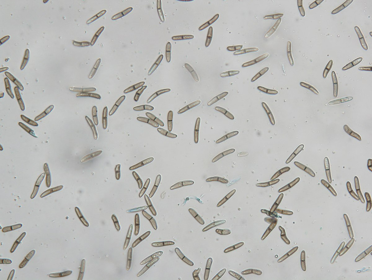 Taxonomia de helminthosporium maydis. veddolcson.hu