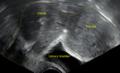 Subserosal uterine fibroid.png