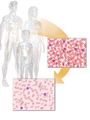 Thalassemia.png