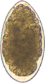 Trichostrongylus spp. egg.png