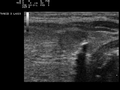 Ultrasound Scan ND 0124152900 1534110.png
