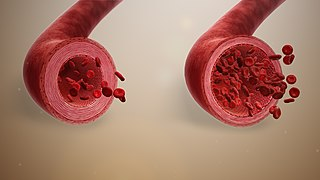 Vasodilation An increase in the internal diameter of blood vessels, especially arterioles or capillaries, due to relaxation of smooth muscle cells that line the vessels, and usually resulting in a decrease in blood pressure.