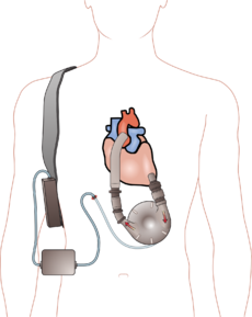 Ventricular assist device.png