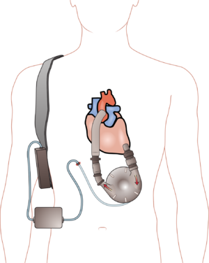 English: Ventricular assist device