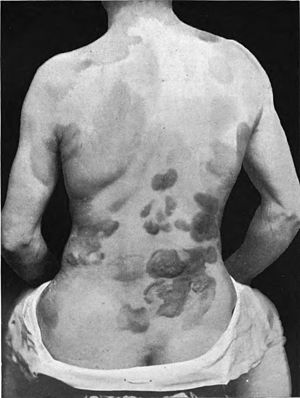 Human T-lymphotropic virus - Figure 1. Showing nodules and plaques composed of lymphocytes spread across the skin