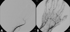 Angiograph before and after thrombolytic therapy in a case of thrombosis on the hand.png