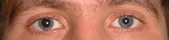 Tropicamide - Anisocoria caused by tropicamide instilled into the right eye only.
