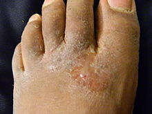 big toe dry skin cracking