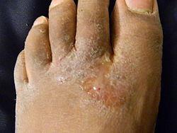 Periodo di trattamento di mikozan