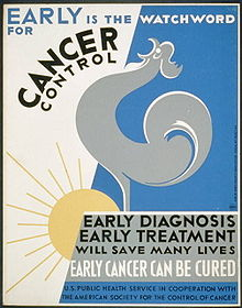 History of cancer - Wikipedia