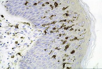表皮に多く存在するランゲルハンス細胞 ランゲルハンス細胞(ランゲルハン... ランゲルハンス細胞