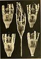 Die gestielten Crinoiden der Deutschen Tiefsee-Expedition (1912) (20925996815).jpg