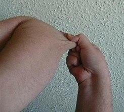 En sanguíneos ruptura vasos los de de dedos imágenes