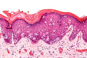 Extramammary Paget disease - high mag.jpg