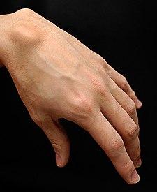 comment soulager la douleur d'un kyste synovial