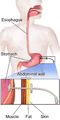 Gastric Feeding Tube Adult.png