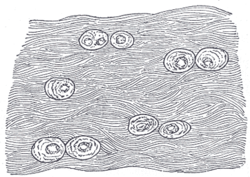 Fibrocartilage Wikipedia