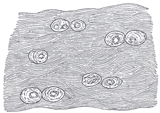 Fibrocartilage - White fibrocartilage from an intervertebral fibrocartilage.
