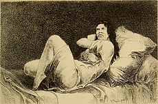 Hysteria and certain allied conditions, their nature and treatment, with special reference to the application of the rest cure, massage, electrotherapy, hypnotism, etc (1897) (14592169327).jpg