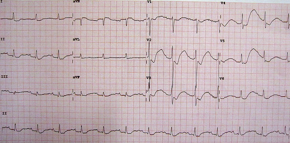 An ECG in a person with a potassium level of 1.1 meq/l showing the classical changes of القطعة إس تي depression, inverted الموجة تي, large U waves, and a slightly prolonged الفترة بي آر
