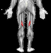 Cuatro causas adicionales ser entusiastas de Dolor muscular